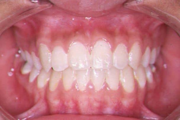 Wynik leczenia ortodontycznego proste ładne zęby