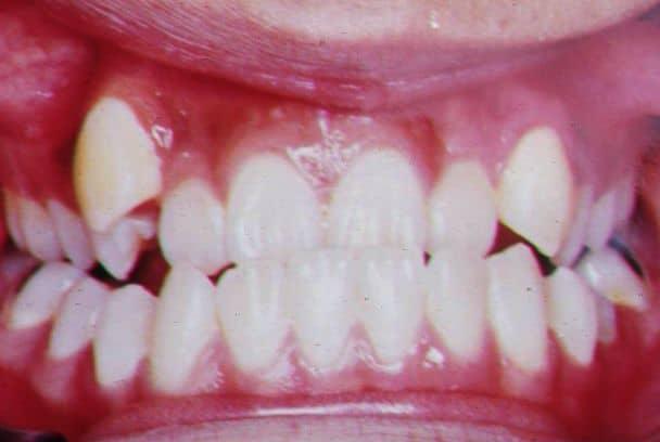 Wada zgryzu ortodontyczna