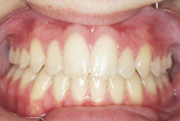 Wynik leczenia ortodontycznego proste zęby