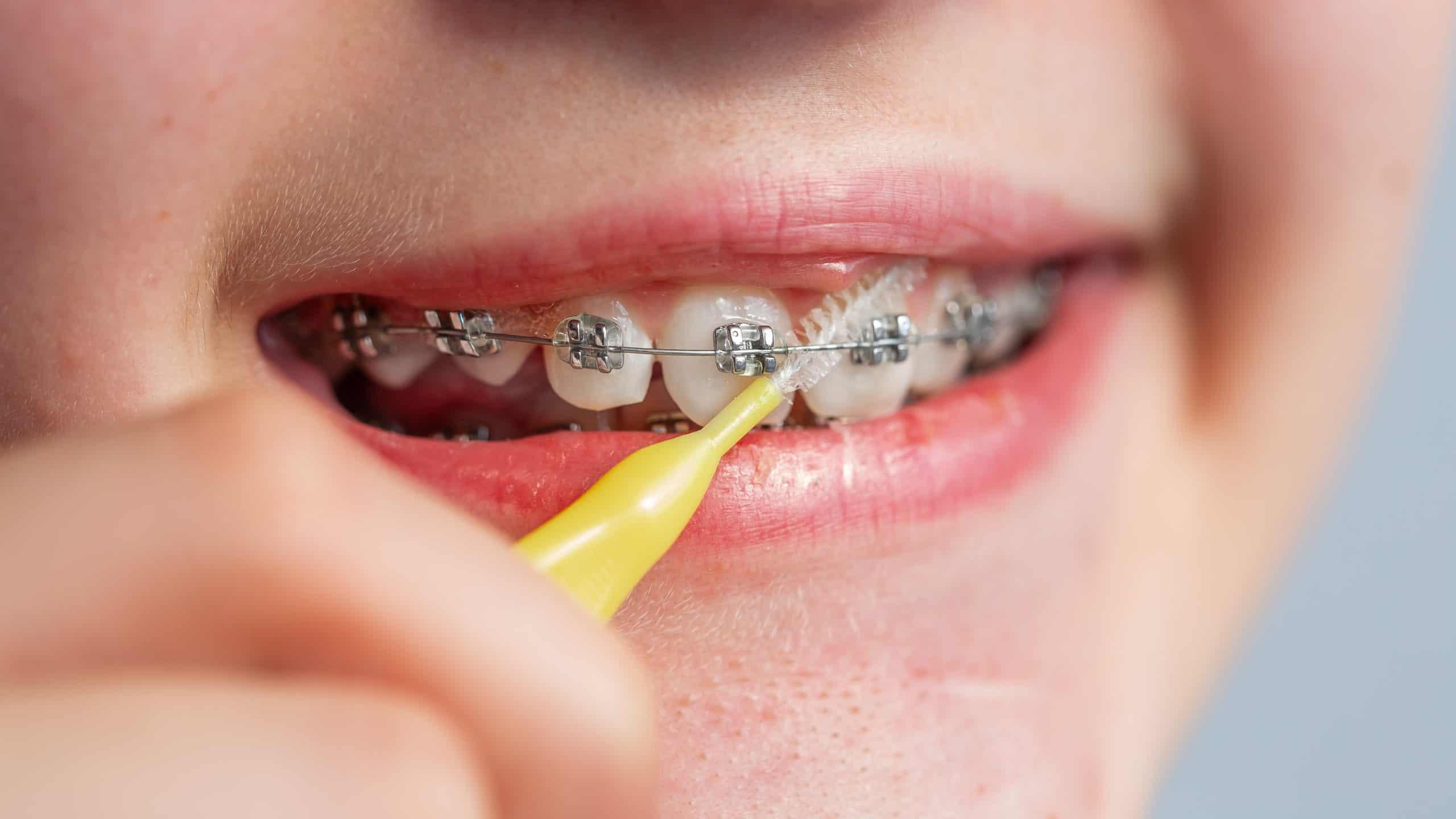 5 Gadżetów do higieny jamy ustnej